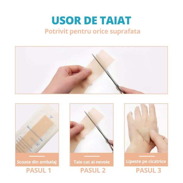 Aplicare-plasturi-vindecare-cicatrici
