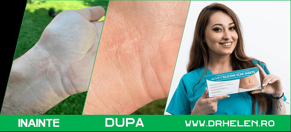 Tratament vergeturi - Anticelulita - plasturi medicinali - Dr Helen